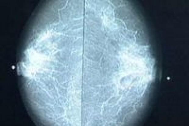 Bezpłatna mammografia w powiecie bolesławieckim