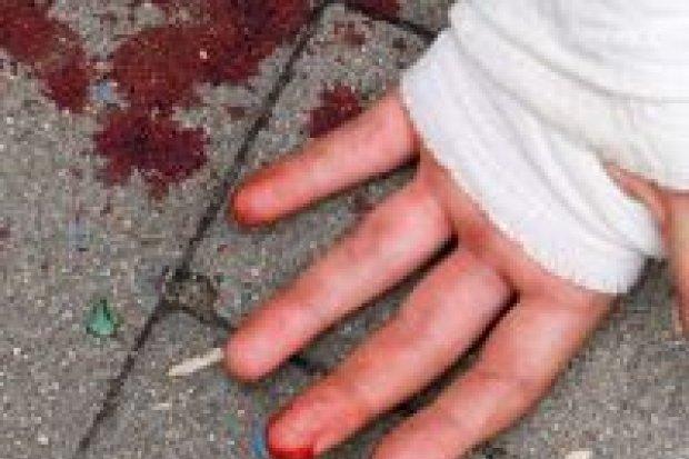 Krwawy skatepark