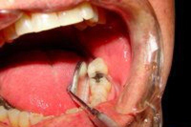 Fałszywy dentysta z Ukrainy zatrzymany