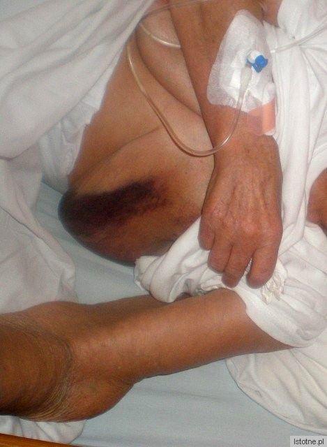 Wnuczka z opiekunka zauważyły u 78-letniej kobiety duży krwiak zaraz jak chora wróciła z SORu.