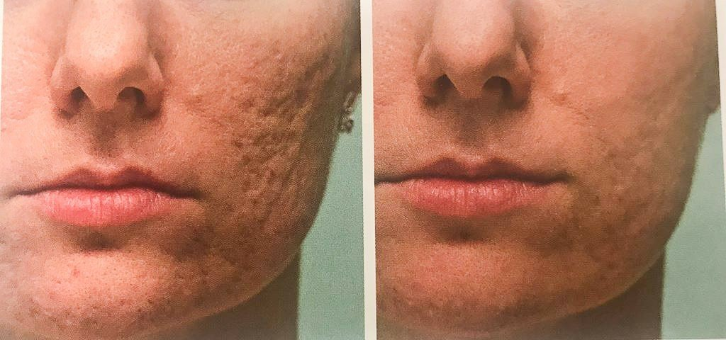 Przed i po eksfoliacji kwasami